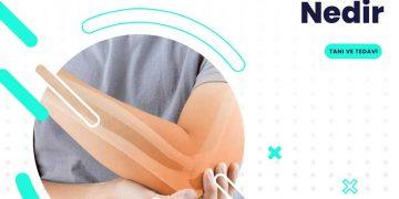 Osteoartrit Tanı ve Tedavi